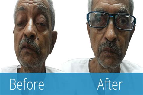 Buy special Ptosis eye crutch glasses in India- Artificial