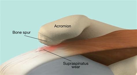 bone-spurs-on-the-undersurface-of-the-acromion-may-create
